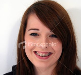 Teenage girl with braces Royalty Free Stock Photo